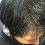 白髪が生えるとかゆい?!